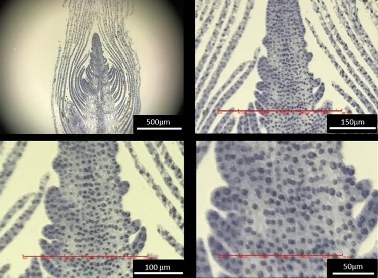 imicro-fingertip-microscope-3